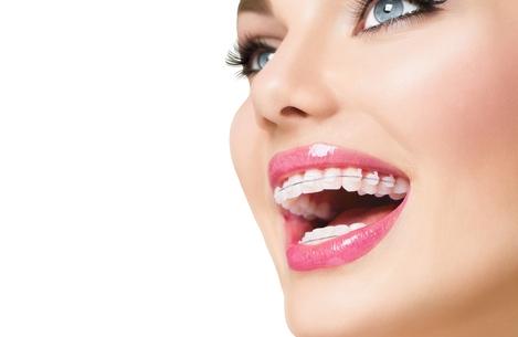 De ce sa porti un aparat dentar?
