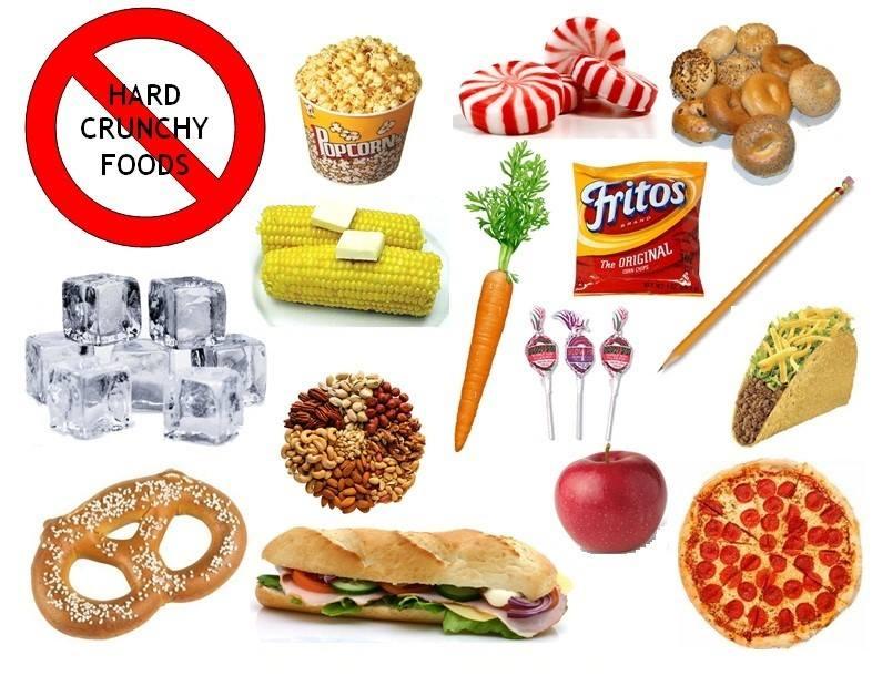 Alimente interzise si alimente permise pacientilor cu bracketuri