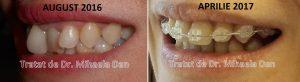 134 aparat dentar fix adulti copii safir ceramica ortodont mirese