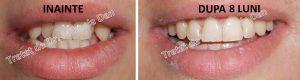 140 aparat dentar bracketuri metalice safir ceramica doctor bun indreptare dinti Mihaela Dan mireasa