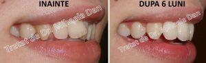 175 aparat dentar bracketuri metalice safir ceramica doctor bun indreptare dinti Mihaela Dan mireasa