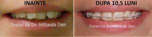 177 aparat dentar bracketuri metalice safir ceramica doctor bun indreptare dinti Mihaela Dan mireasa