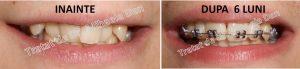 185 aparat dentar bracketuri metalice safir ceramica doctor bun indreptare dinti Mihaela Dan