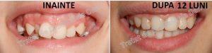 2 nunta aparat dentar fix pferta pret bun mireasa