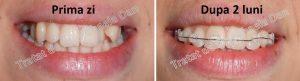 aparat dentar safir adulti bracketi bracketuri