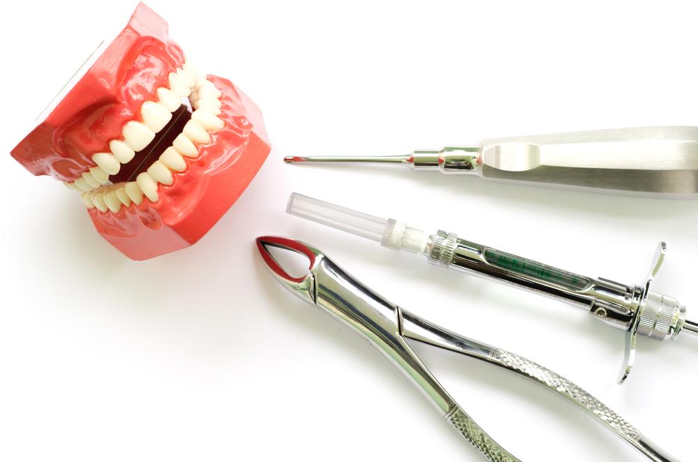 Extracție molar de minte, când se recomandă și ce trebuie să știi