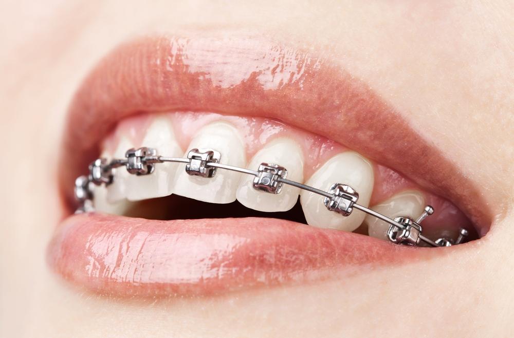 Aparate dentare fixe adulti