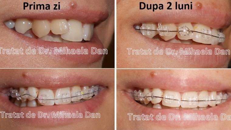 Aparatul dentar de safir