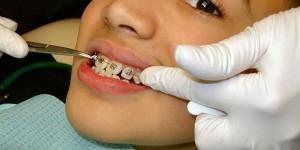 Aparate dentare pentru copii