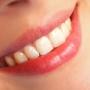 Ce sa aleg – fatete dentare sau aparat dentar